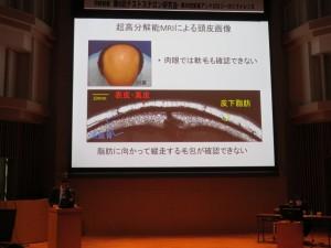 超高分解能MRIによる頭皮画像