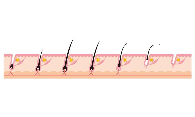 ヘアサイクルの乱れが原因で抜け毛が進む