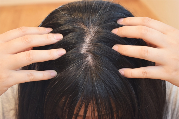 抜け毛の大きな原因がAGAと女性型AGA