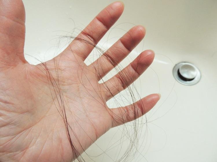 抜け毛が多い理由が知りたい!多い判断基準や多くなる時期、理由を教えて!