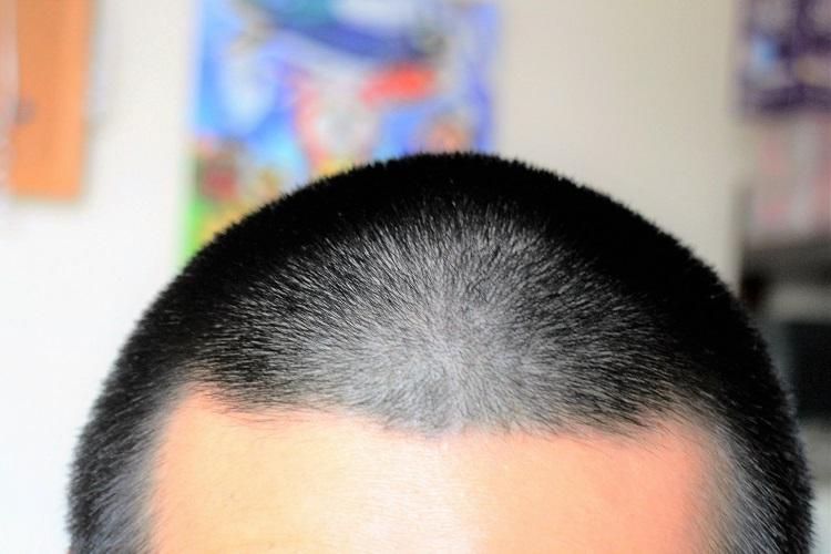 薄毛には坊主頭スタイルが最強の髪型?